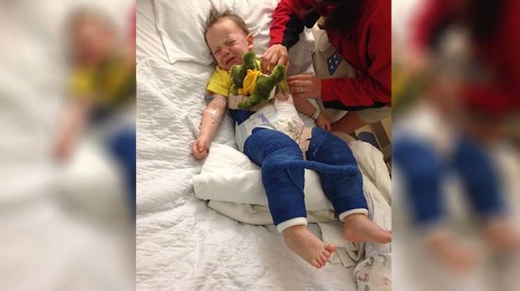 Trambolin 3 yaşındaki çocuğun kalçasını kırdı