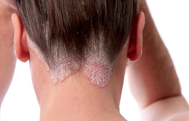 mantar hastaligi nasil tedavi edilir mantar belirtileri ve tedavisi saglik haberleri