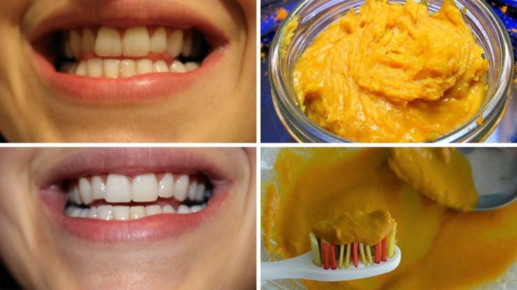 portakal kabuğu diş beyazlatma