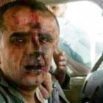 ÖSO, Suriyeli pilotu esir aldı