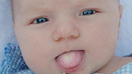 Bebeklerde pamukçuk nasıl geçer? Ne iyi gelir?